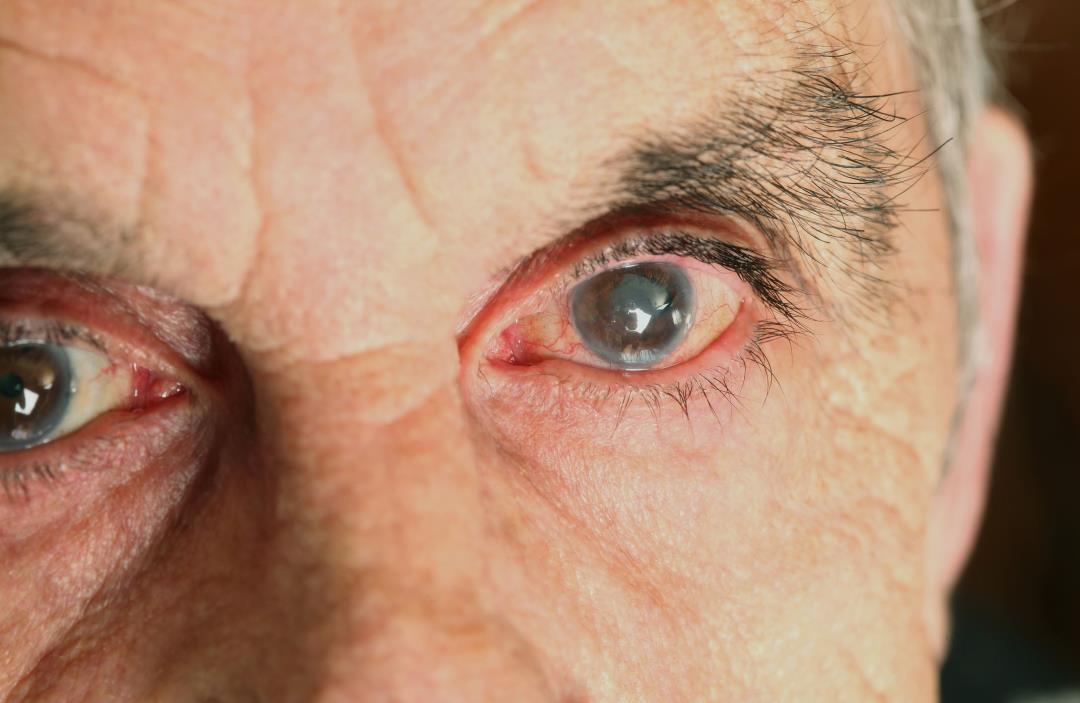 камбала пульсирует картинка в глазах привести