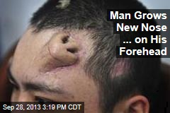 Man Grows New Nose ... on His Forehead