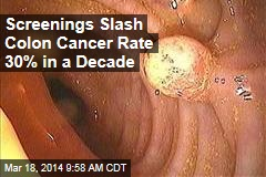 Screenings Slash Colon Cancer Rate 30% in a Decade