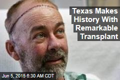 Texas Makes History With Skull, Scalp Transplant