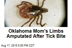 Oklahoma Mom's Limbs Amputated After Tick Bite