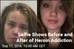 Selfie Shows Before and After of Heroin Addiction