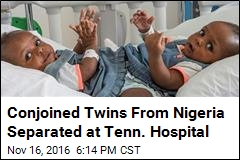 Conjoined Twins From Nigeria Separated at Tenn. Hospital
