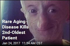 Man Dies at 20 of 'Benjamin Button' Disease
