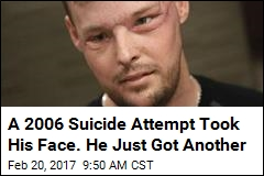 A 2006 Suicide Attempt Took His Face. He Just Got Another
