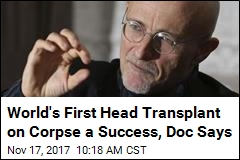 World's First Head Transplant on Corpse a Success, Doc Says