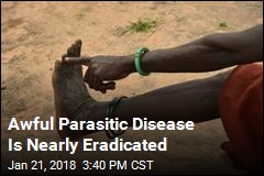 World Is Close to Eradicating Guinea Worm Disease