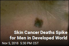 Skin Cancer Deaths Spike for Men in Developed World
