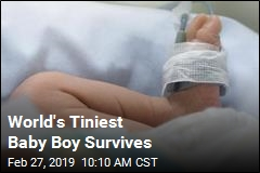 He Was 9.45 Ounces at Birth and Survived