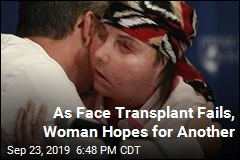 Woman Could Have a Second Face Transplant