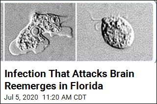 Florida Reports New Case of Brain-Destroying Amoeba
