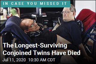 Conjoined Twins Who Lived to Noteworthy Age Have Died