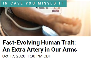 You Might Have an Extra Artery in Your Arm