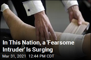 In This Nation, a 'Fearsome Intruder' Is Surging