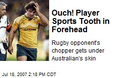 Ouch! Player Sports Tooth in Forehead