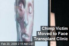 Chimp Victim Moved to Face Transplant Clinic